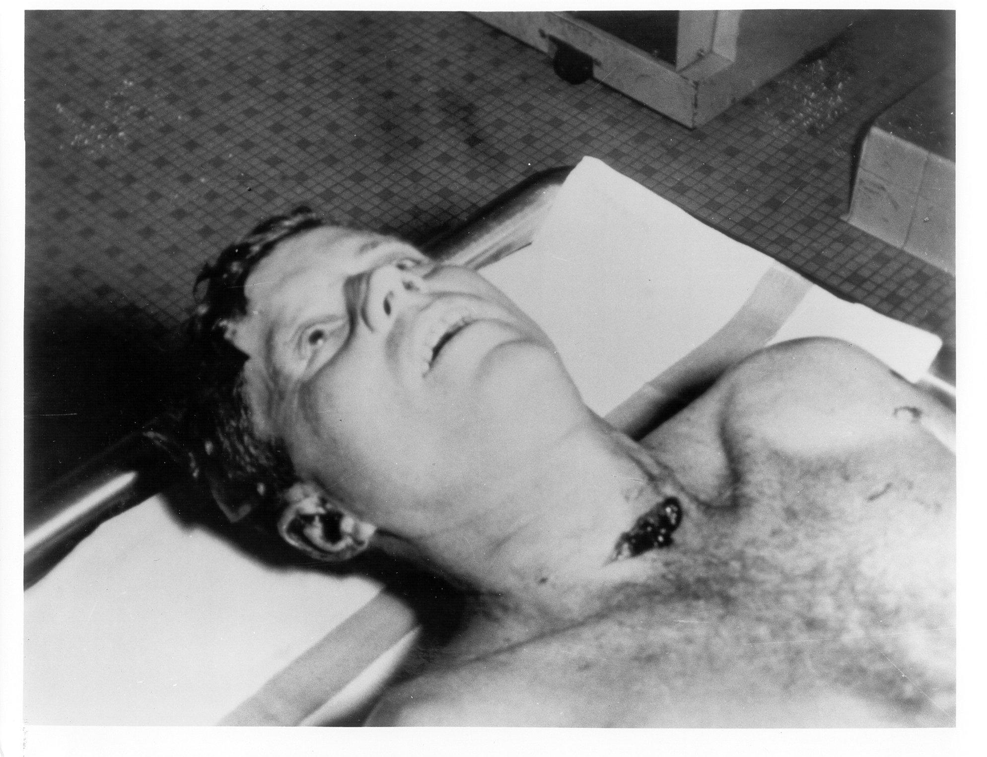 JFK Head Wound Forensics | Political Film Blog